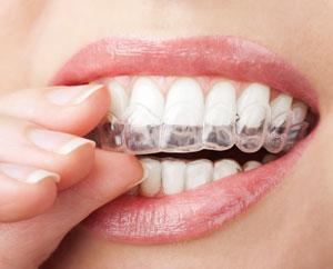 invisible-braces-1